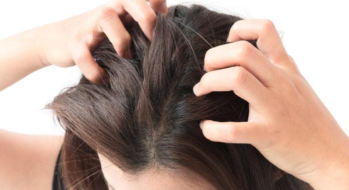 Wenn trockene Kopfhaut zum Problem wird - Ursachen und Lösungen
