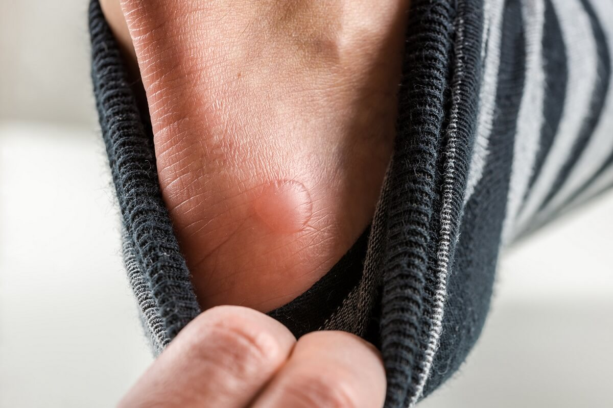Wir geben Ihnen Tipps, wie Sie die Brandblase behandeln