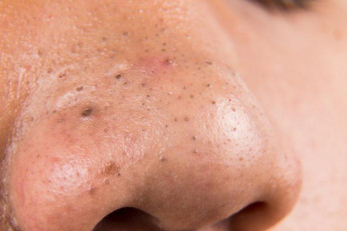 Mitesser befinden sich häufig im Gesicht, sehr oft auf der Nase - Wir geben Tipps gegen Mitesser